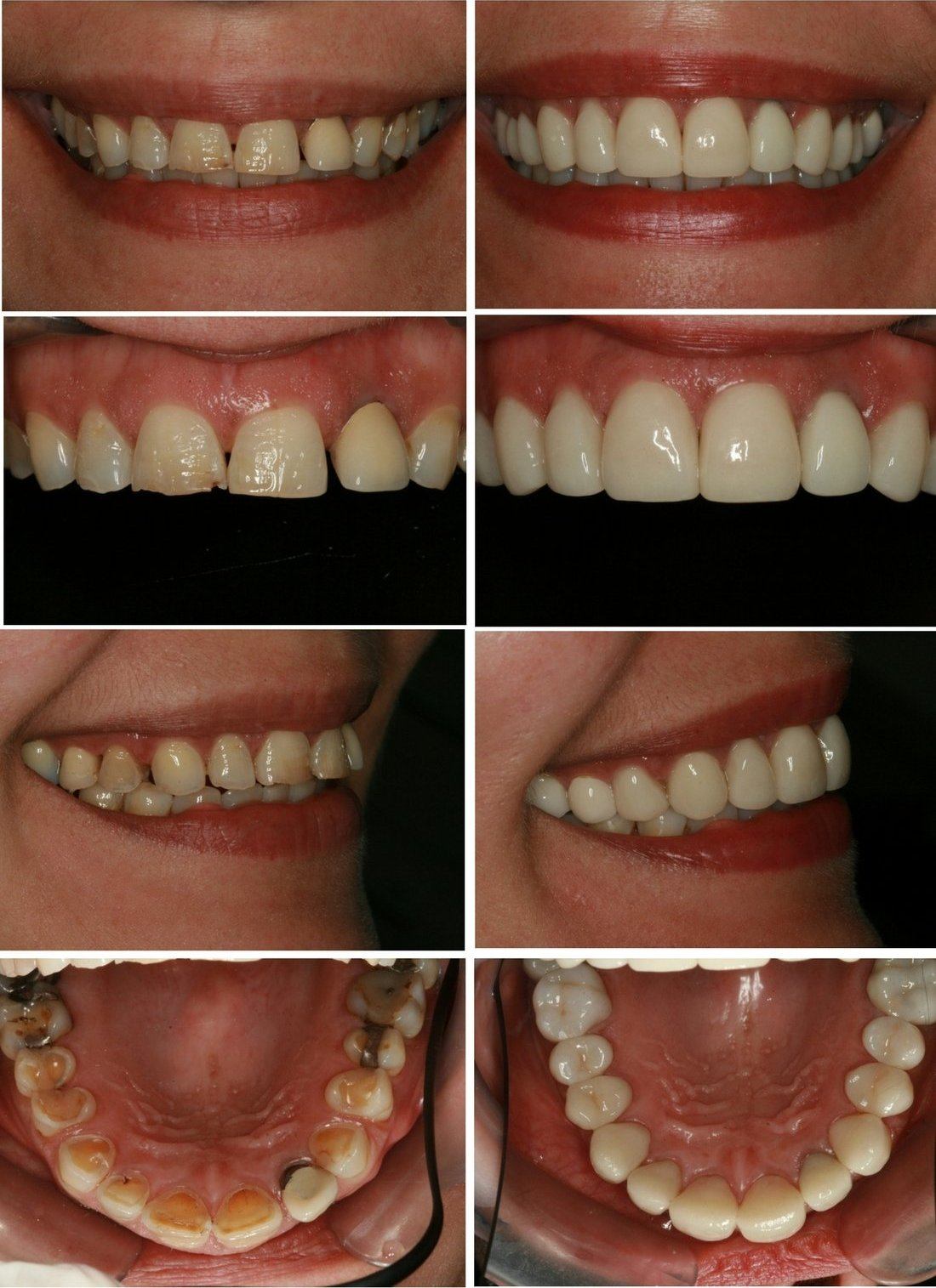 Cosmetic Dentistry in Durban