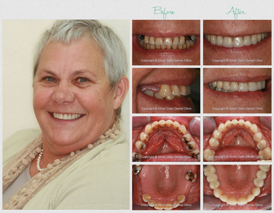 Dental Implants before after 1