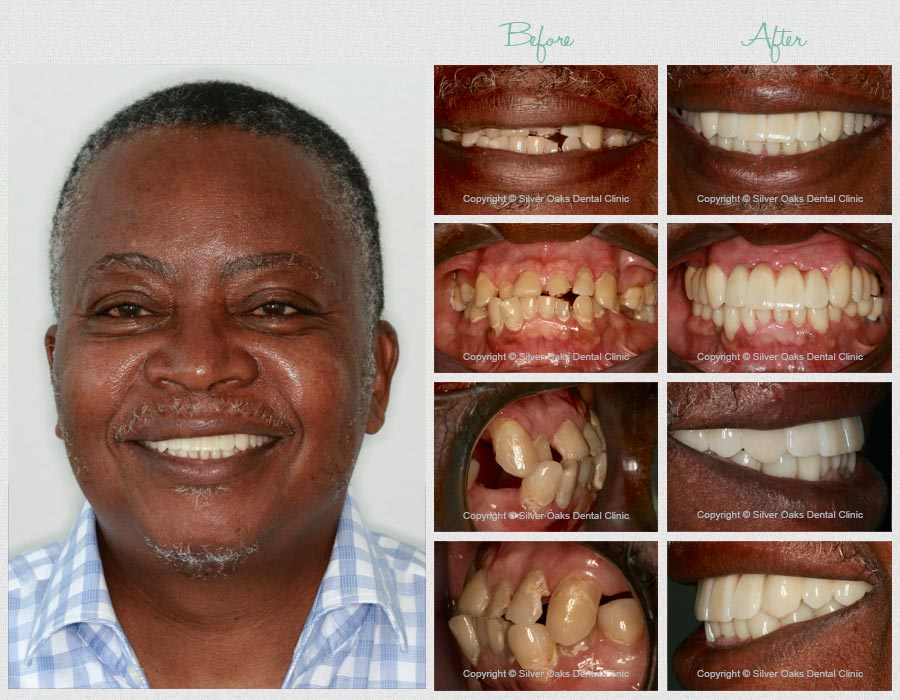 Dental Implants before after 2
