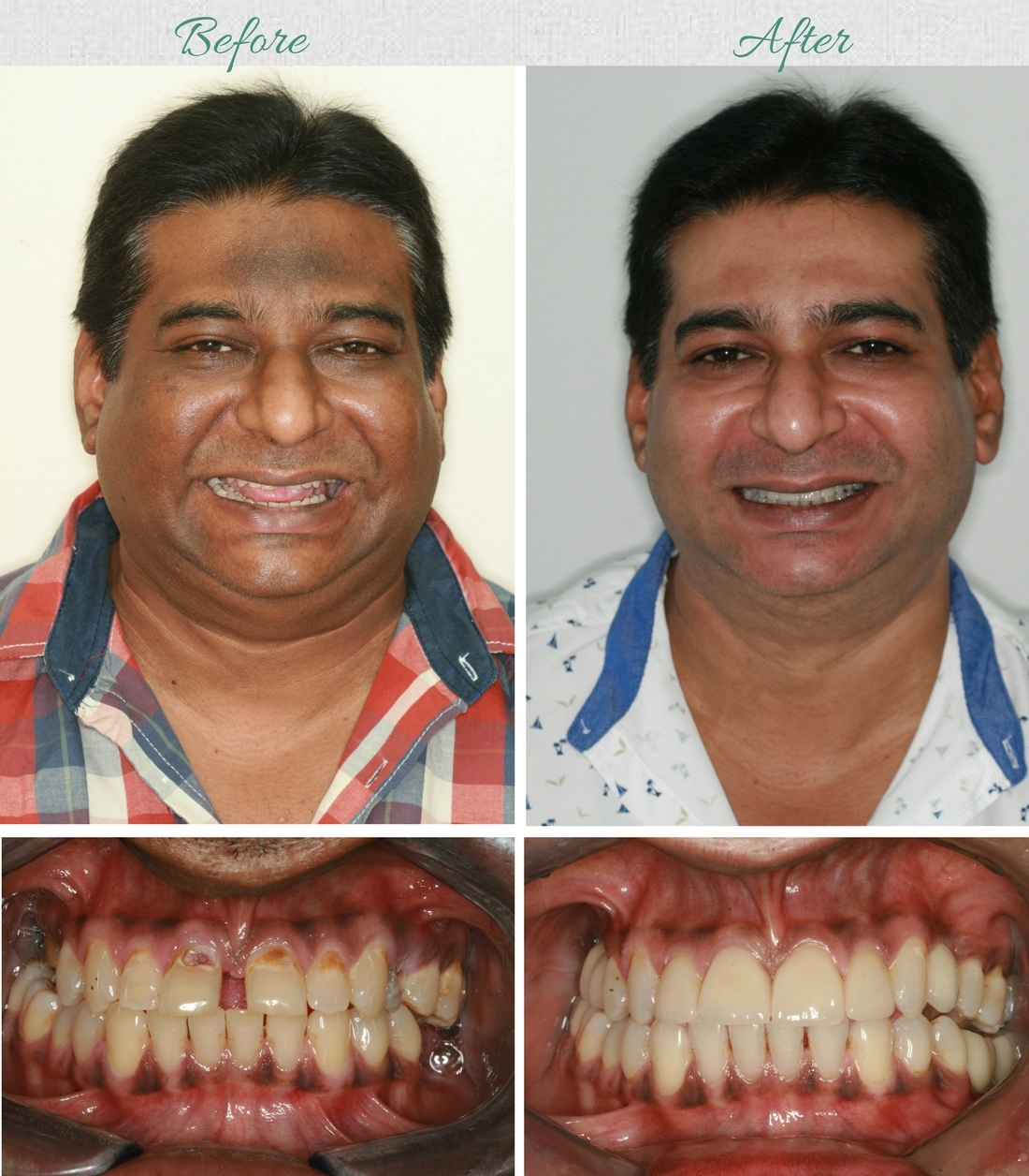 Dental Veneers Cost