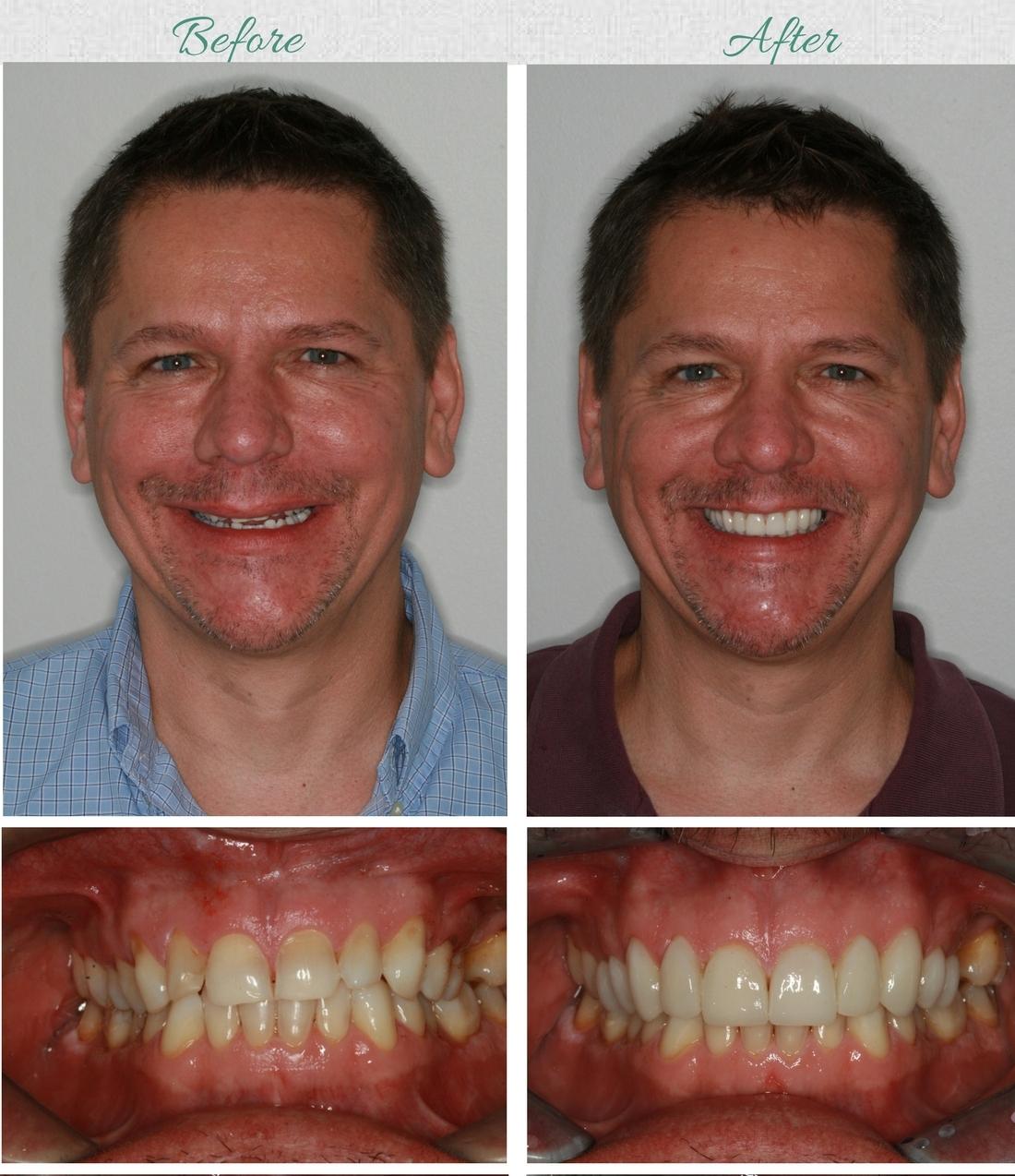 Dental Veneers South Africa