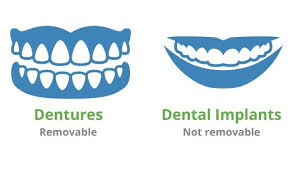 Dentures Vs Dental Implants