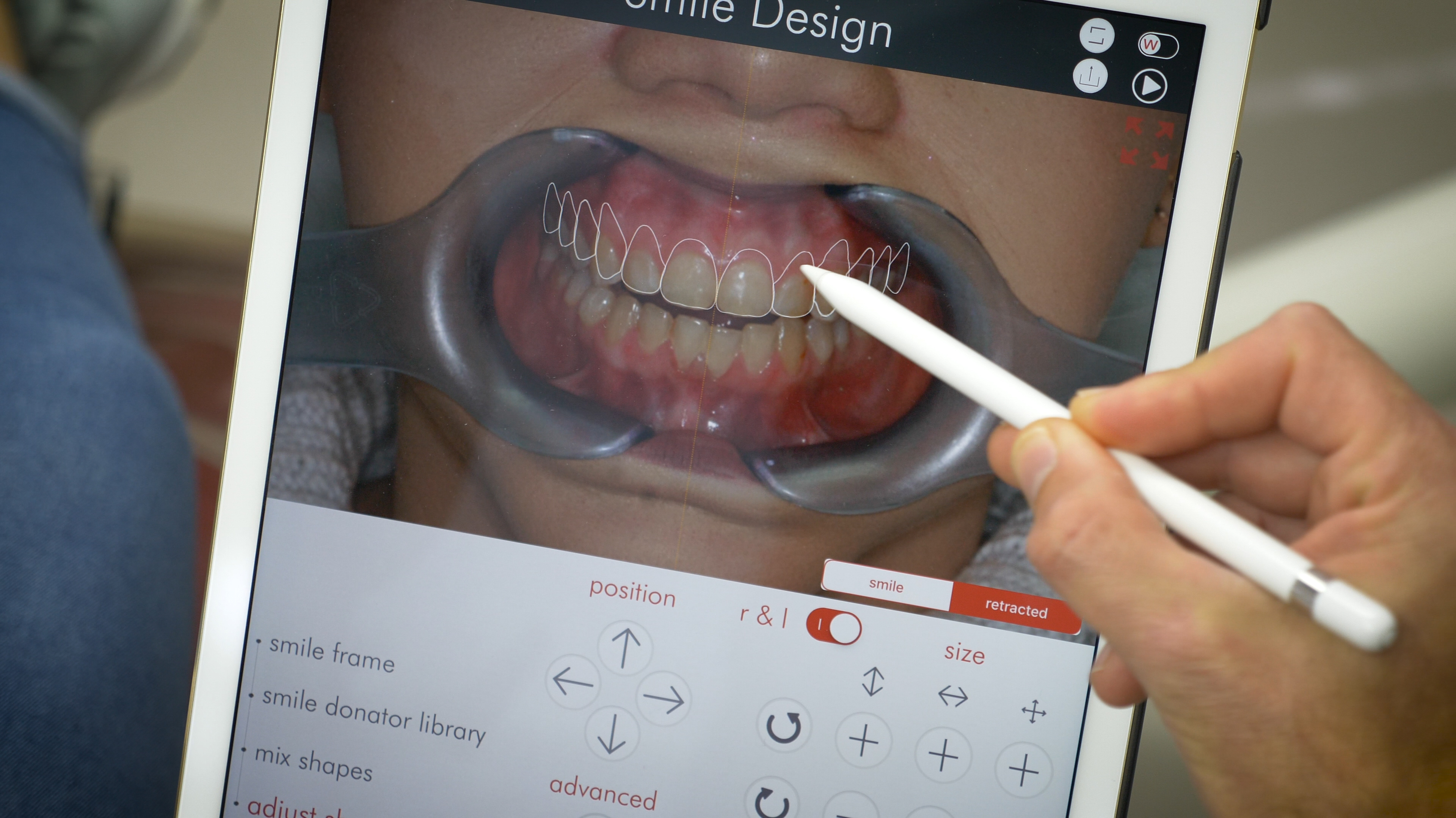 Digital Smile Design Explaination