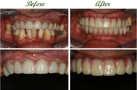 Full mouth Dental Implants 2