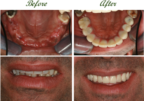 Full mouth dental implants 3