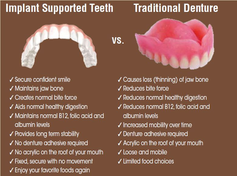 Implant vs Traditional Denture