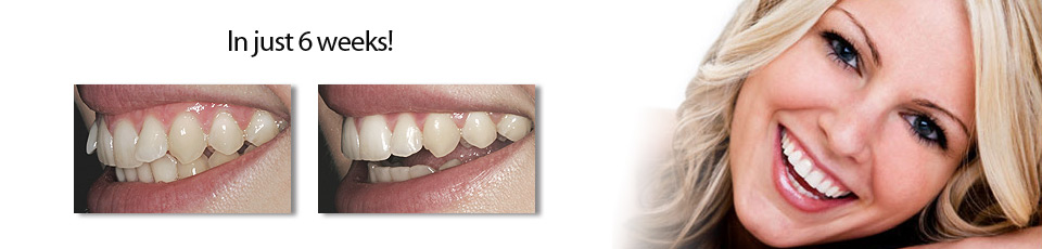 Inman Aligner before and after 2
