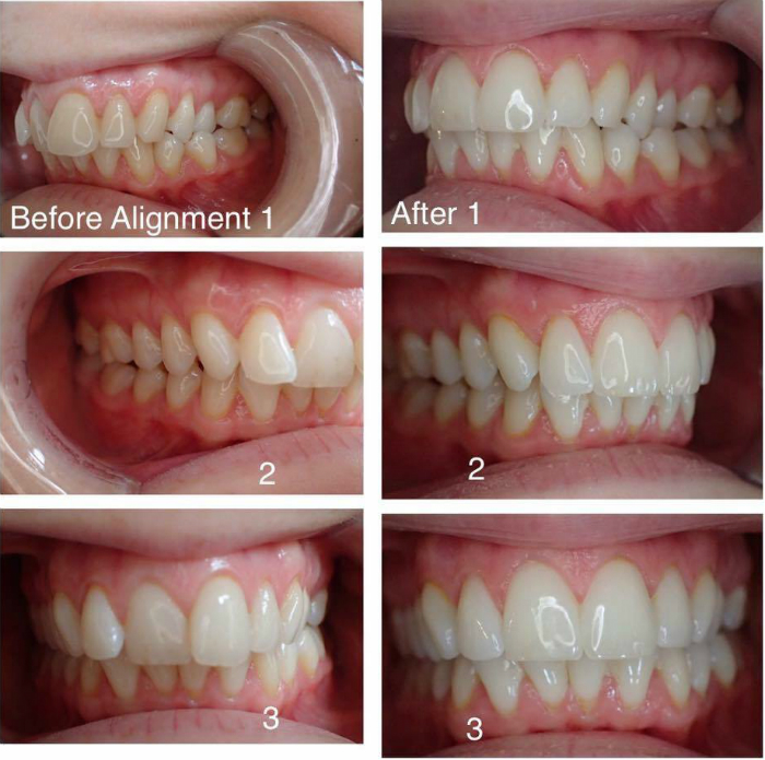Inman aligner treatment