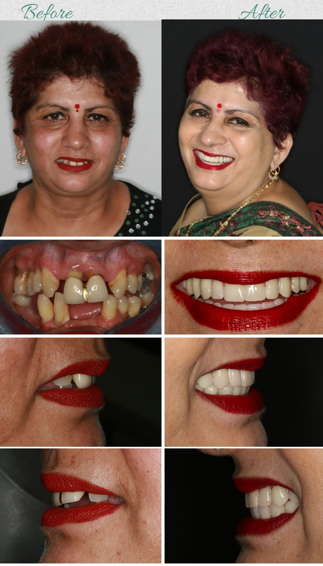 When to consider dental implants 2
