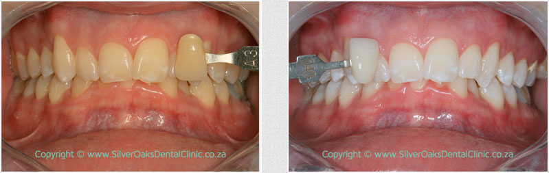 before after whitening02