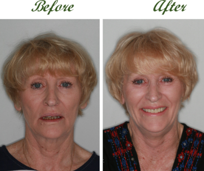 dental implants are worth it 3