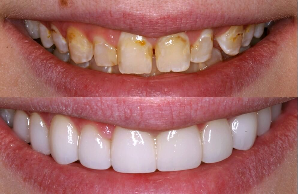 dental veneers chipped teeth