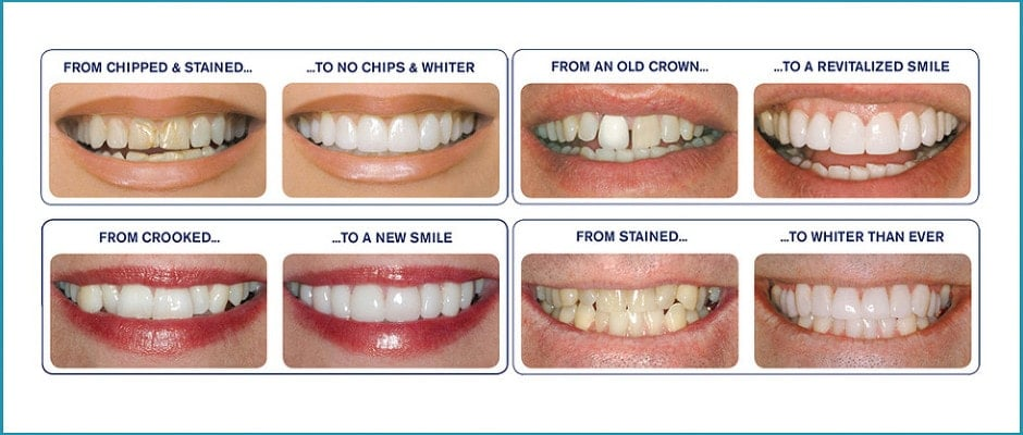 dental veneers for chipped crooked teeth