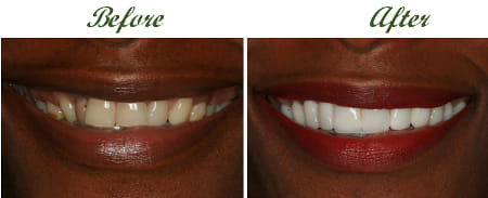 dental veneers in south africa 1