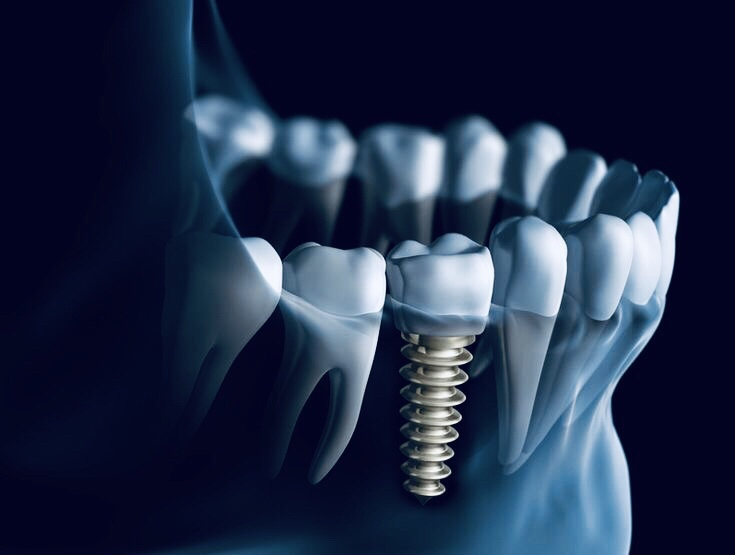fix tooth loss with dental implants