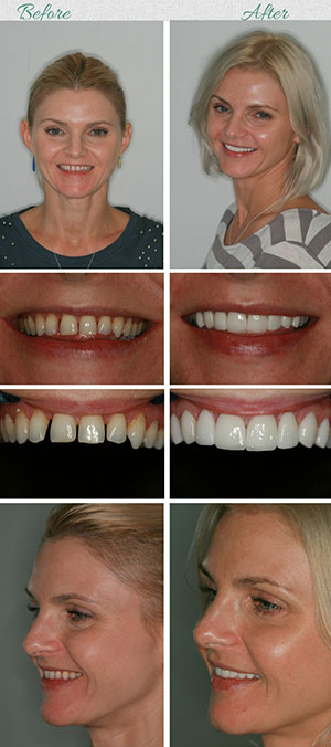 porcelain veneers in South Africa