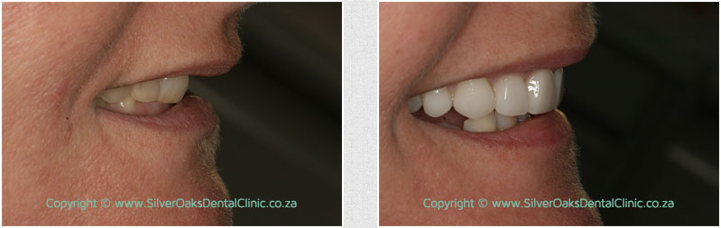 smile-gallery-laura02