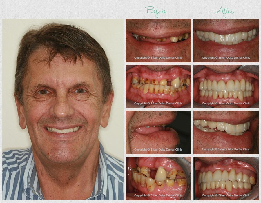 treatments before after johannes