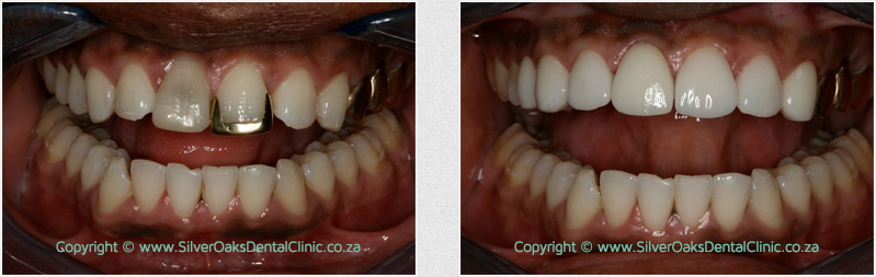 before after crowns