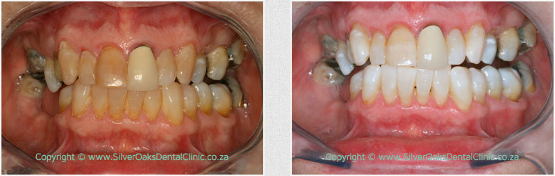 before-after-whitening01