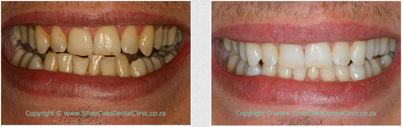 before-after-whitening03
