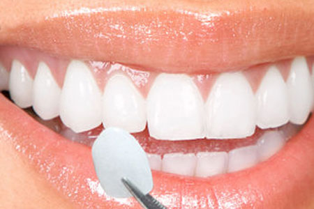 what are dental veneers