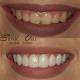 5 ways to whiten your teeth