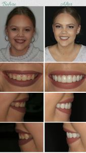 5 ways to whiten your teeth quickly