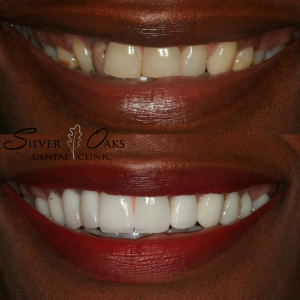 Chipped, broken, stained and misaligned teeth