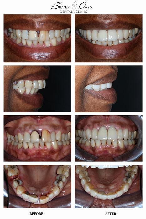 Dental Implants Case 10
