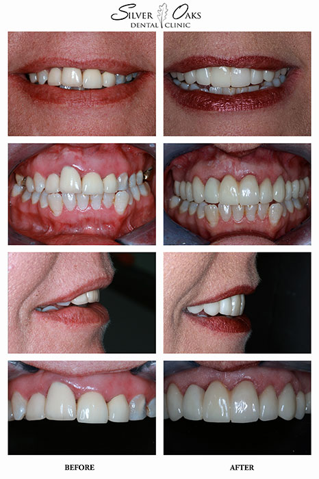 Dental Implants Case 11