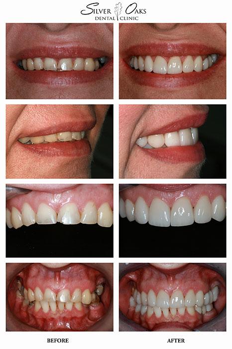 Dental Implants Case 13