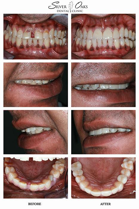 Dental Implants Case 15