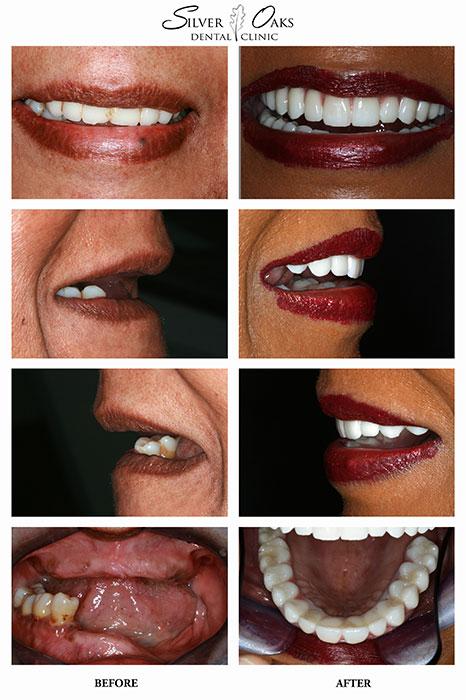 Dental Implants Case 16