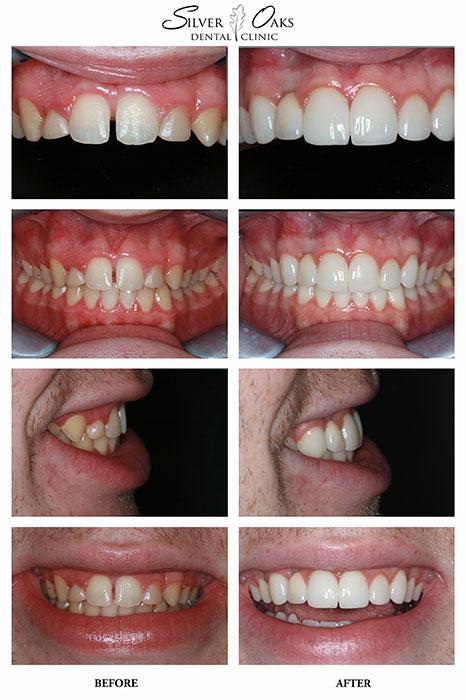 Dental Implants Case 17