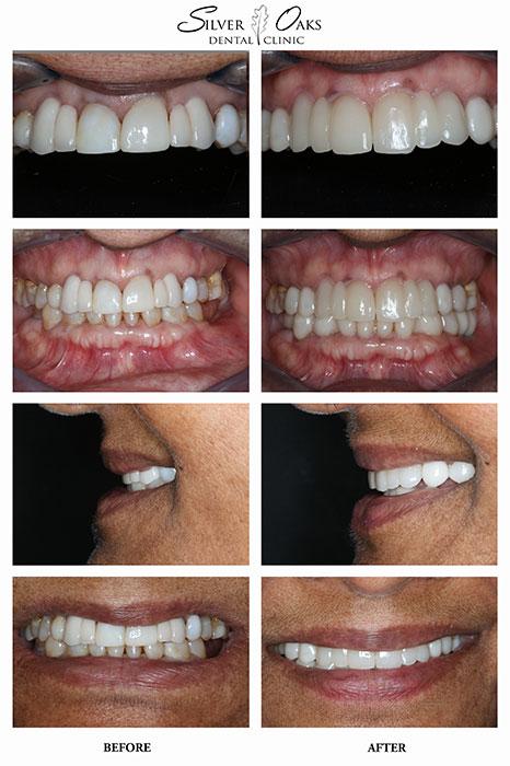 Dental Implants Case 18