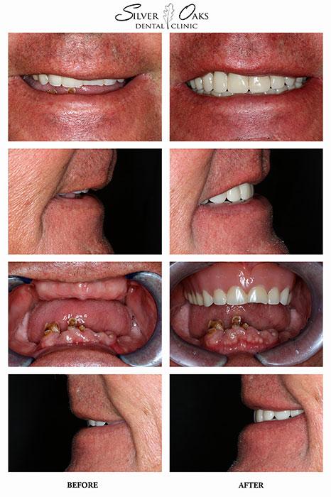 Dental Implants Case 19