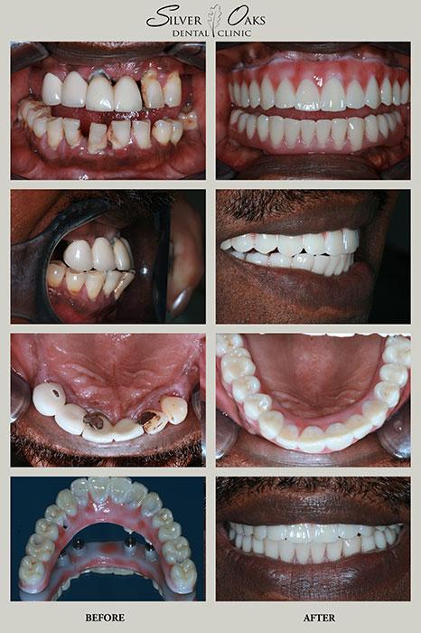 Dental Implants Case 1