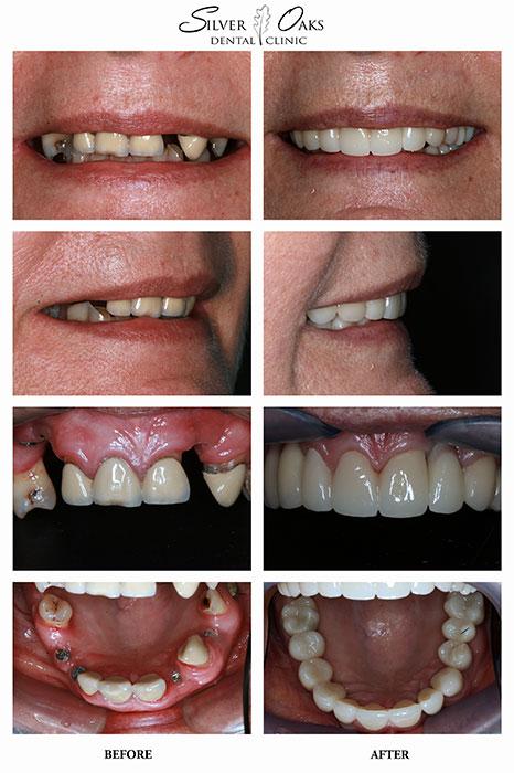 Dental Implants Case 2