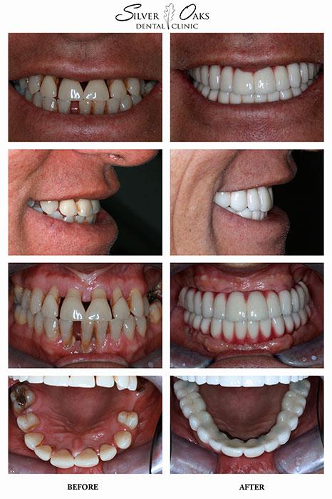 Dental Implants Case 4