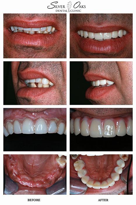 Dental Implants Case 6