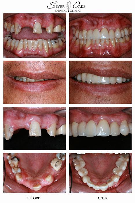 Dental Implants Case 8