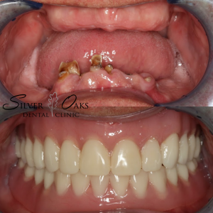 Dental Implants For Repairing The Smile After Tooth Loss 4