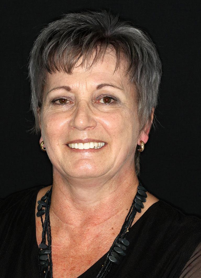Dental Implants Patient Claire