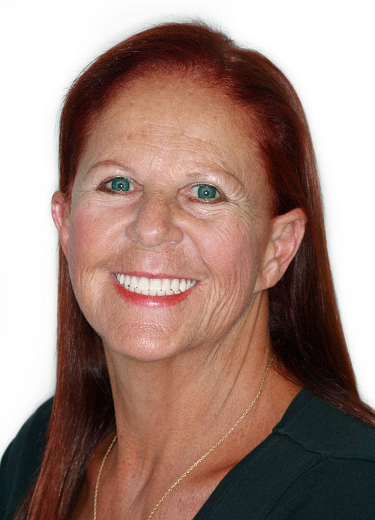 Dental Implants Patient Katherine