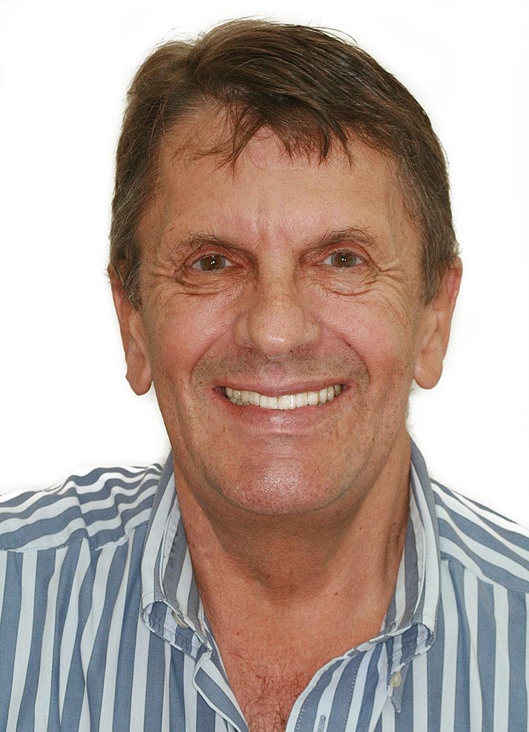 Dental Implants Patient Johannes