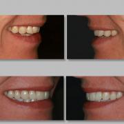 Dental Veneers Cara