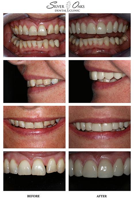 Dental Veneers Case 11