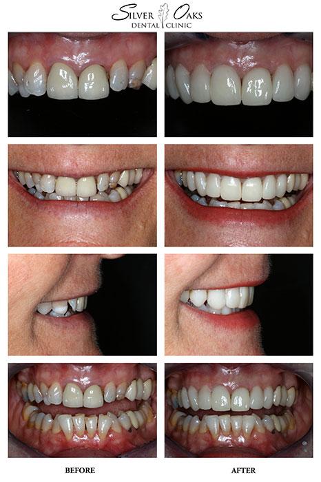 Dental Veneers Case 13