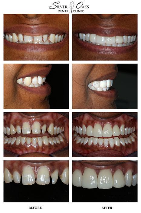 Dental Veneers Case 15